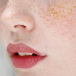 メラニンの黒い色素が排出されない肌
