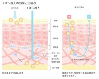 イオン導入の効果