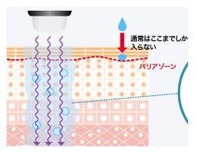 イオン導入の施術
