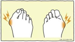 滑液包により親指のつけ根に痛みが出る
