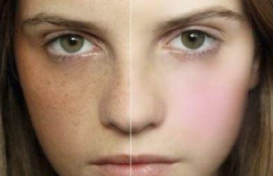 くすんだ肌と美肌の比較