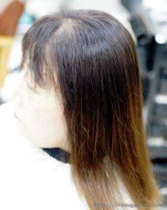 女性の薄毛21