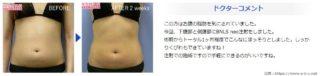 痩せるクリーム_湘南美容外科症例03