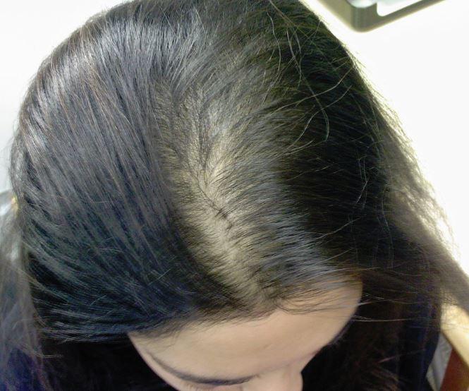 女性の薄毛03