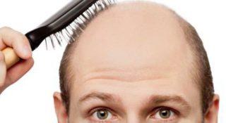 男性の薄毛