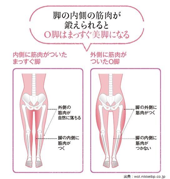 骨盤のゆがみによるO脚