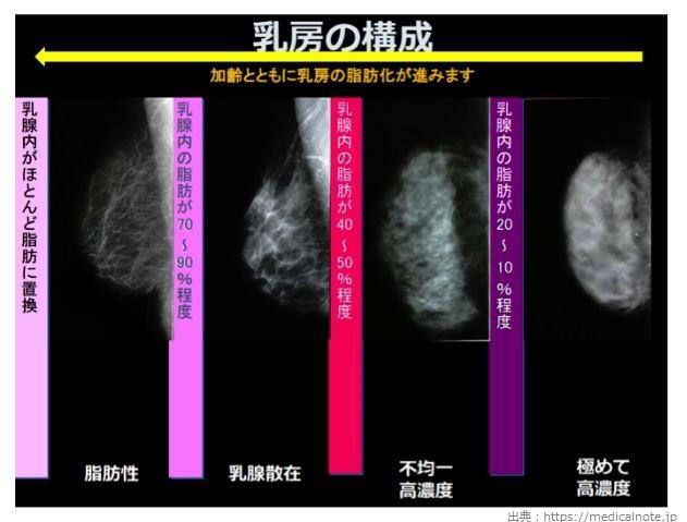 乳腺が脂肪にかわる