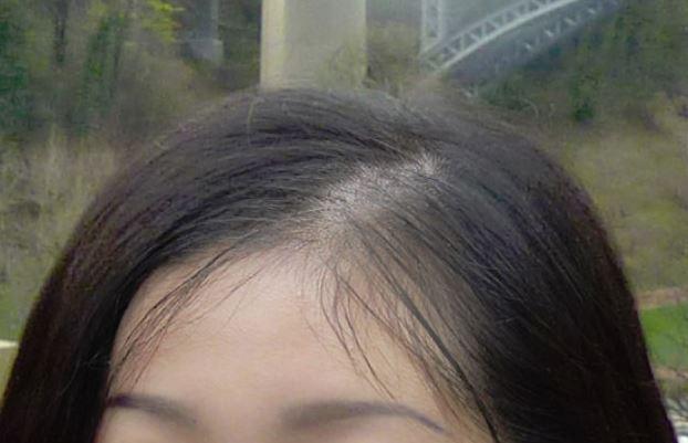 女性の薄毛18