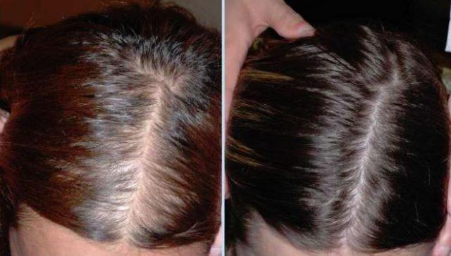 女性の薄毛12