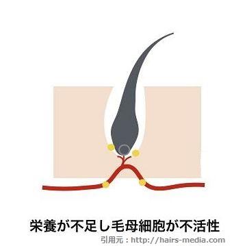 髪の毛を生やすための細胞がはたらきにくくなっている