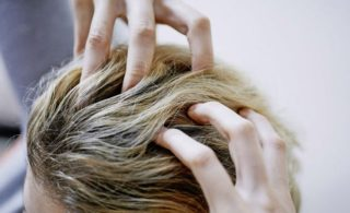 女性の薄毛15