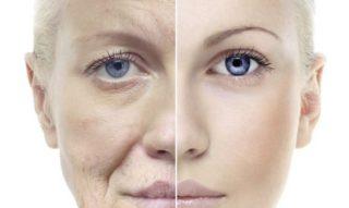 年齢による顔のたるみ