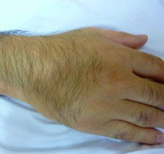 手の甲の毛