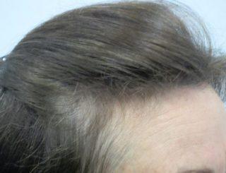 女性の薄毛06